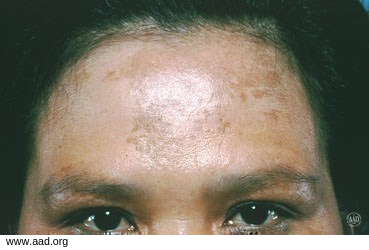 At Home Peels For Melasma Reverse Face Discoloration